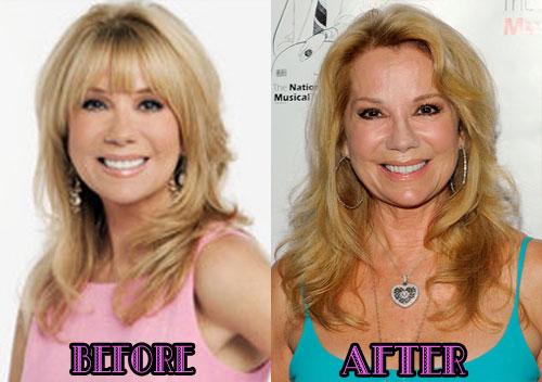 Kathie Lee Gifford plastic surgery, Kathie Lee Gifford plastic surgery botox, Kathie Lee Gifford plastic surgery cheek augmentationn, facelift2