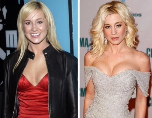 Kellie Pickler plastic surgery, Kellie Pickler plastic surgery before and after photos, Kellie Pickler plastic surgery breast augmentation, Kellie Pickler plastic surgery botox, Kellie Pickler plastic surgery facelift