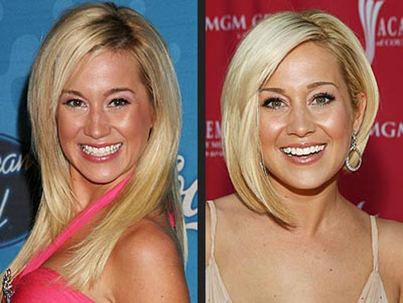 Kellie Pickler plastic surgery, Kellie Pickler plastic surgery before and after photos, Kellie Pickler plastic surgery breast augmentation, Kellie Pickler plastic surgery botox, Kellie Pickler plastic surgery facelift1