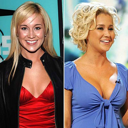 Kellie Pickler plastic surgery, Kellie Pickler plastic surgery before and after photos, Kellie Pickler plastic surgery breast augmentation, Kellie Pickler plastic surgery botox, Kellie Pickler plastic surgery facelift2