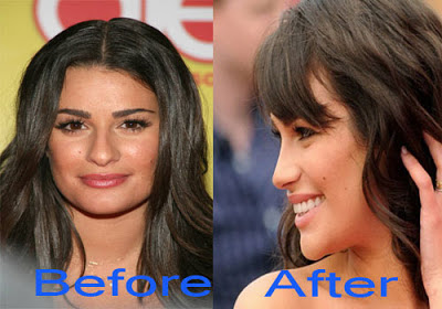 Lea Michele Nose Job Before And After Photos, Lea Michele plastic surgery, Lea Michele nose job1
