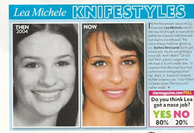 Lea Michele Nose Job Before And After Photos, Lea Michele plastic surgery, Lea Michele nose job2