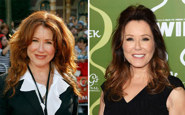Mary McDonnell plastic surgery, Mary McDonnell plastic surgery before and after photos, Mary McDonnell plastic surgery facelift, Mary McDonnell plastic surgery botox, Mary McDonnell plastic surgery breast augmentation