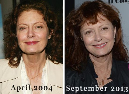 Susan Sarandon Plastic Surgery Before And After Photos, Susan Sarandon Plastic Surgery, Susan Sarandon Plastic Surgery breast implants, Susan Sarandon Plastic Surgery liposuction1