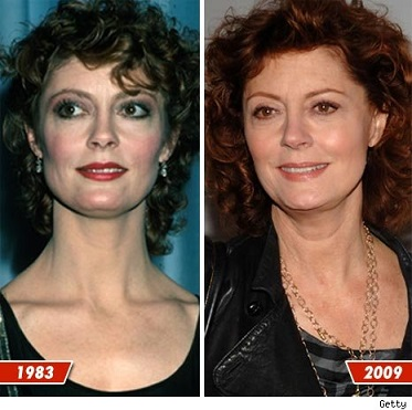 Susan Sarandon Plastic Surgery Before And After Photos, Susan Sarandon Plastic Surgery, Susan Sarandon Plastic Surgery breast implants, Susan Sarandon Plastic Surgery liposuction2