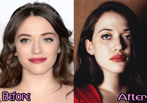 kat dennings plastic surgery, kat dennings plastic surgery before after photos, kat dennings plastic surgery breast size, kat dennings plastic surgery lips surgery, kat dennings plastic surgery bra size