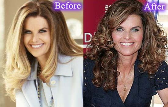 maria shriver plastic surgery, maria shriver plastic surgery before and after photos, maria shriver plastic surgery botox, maria shriver plastic surgery facelift