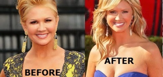 nancy o dell plastic surgery, nancy o dell plastic surgery before after photos, nancy o dell plastic surgery botox injections, nancy o dell plastic surgery breast augmentation