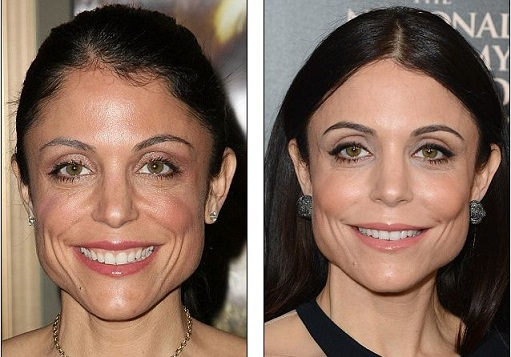 Bethenny Frankel plastic surgery, Bethenny Frankel plastic surgery before after photos, Bethenny Frankel breast augmentation, Bethenny Frankel breast implants, Bethenny Frankel botox