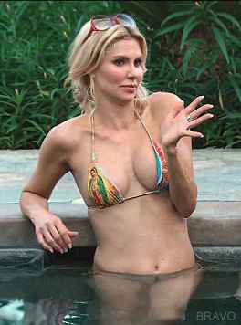 Brandi Glanville Plastic Surgery, Brandi Glanville before after photos, Brandi Glanville breast augmentation, Brandi Glanville breast implants, Brandi Glanville vaginal rejuvenation, Brandi Glanville nose job, Brandi Glanville botox5