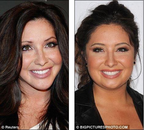 Bristol Palin Plastic Surgery, Bristol Palin Plastic Surgery before and after photos, Bristol Palin jaw surgery2