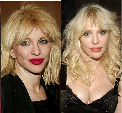 Courtney Love plastic surgery, Courtney Love plastic surgery before after photos, Courtney Love plastic surgery facelift, Courtney Love plastic surgery nose job, Courtney Love plastic surgery botox3