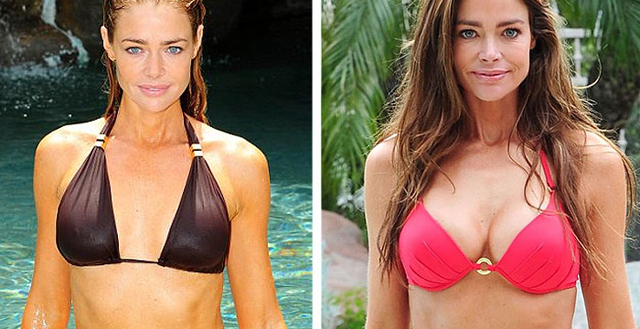 Denise Richards plastic surgery, Denise Richards breast augmentation, Denise Richards plastic surgery before after photos, Denise Richards breast implants, Denise Richards Botox and lip injections, fillers