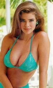 Denise Richards plastic surgery, Denise Richards breast augmentation, Denise Richards plastic surgery before after photos, Denise Richards breast implants, Denise Richards Botox and lip injections, fillers2