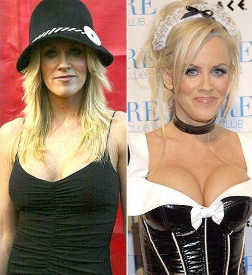 Jenny McCarthy plastic surgery, Jenny McCarthy plastic surgery before after photos, Jenny McCarthy breast augmentation, Jenny McCarthy plastic surgery botox, Jenny McCarthy breast implants