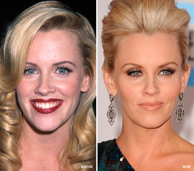 Jenny McCarthy plastic surgery, Jenny McCarthy plastic surgery before after photos, Jenny McCarthy breast augmentation, Jenny McCarthy plastic surgery botox, Jenny McCarthy breast implants2