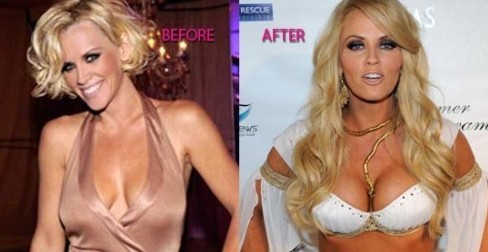 Jenny McCarthy plastic surgery, Jenny McCarthy plastic surgery before after photos, Jenny McCarthy breast augmentation, Jenny McCarthy plastic surgery botox, Jenny McCarthy breast implants3