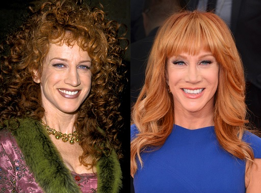 Kathy Griffin Plastic Surgery, Kathy Griffin Plastic Surgery liposuction, Kathy Griffin Plastic Surgery before after photos, Kathy Griffin nose job, Kathy Griffin brow lift, Kathy Griffin dental fixture