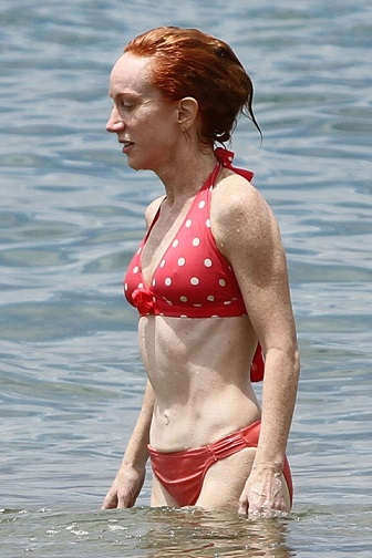 Kathy Griffin Plastic Surgery, Kathy Griffin Plastic Surgery liposuction, Kathy Griffin Plastic Surgery before after photos, Kathy Griffin nose job, Kathy Griffin brow lift, Kathy Griffin dental fixture1