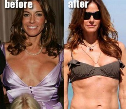 Kelly Bensimon plastic surgery, Kelly Bensimon plastic surgery before after photos, Kelly Bensimon breast augmentation, Kelly Bensimon breast implants, Kelly Bensimon botox, Kelly Bensimon liposuction