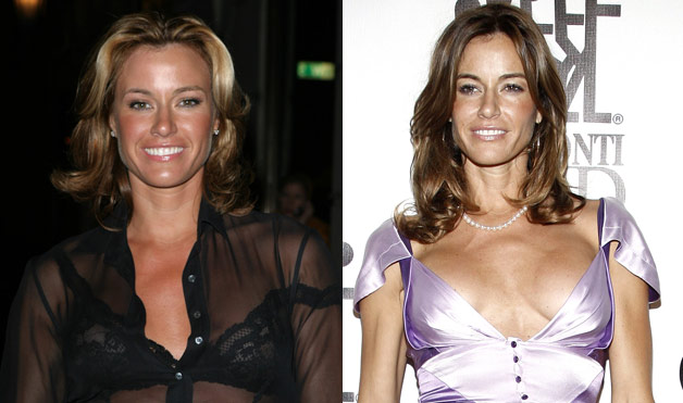 Kelly Bensimon plastic surgery, Kelly Bensimon plastic surgery before after photos, Kelly Bensimon breast augmentation, Kelly Bensimon breast implants, Kelly Bensimon botox, Kelly Bensimon liposuction1