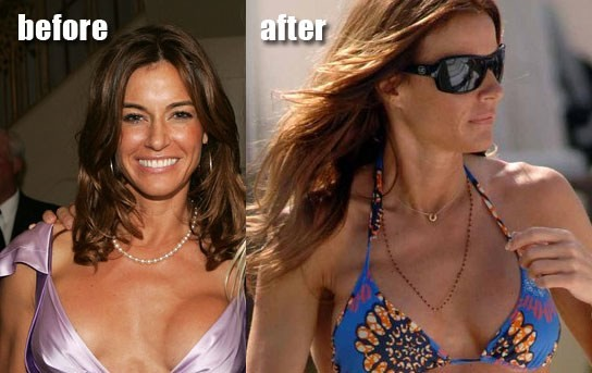 Kelly Bensimon plastic surgery, Kelly Bensimon plastic surgery before after photos, Kelly Bensimon breast augmentation, Kelly Bensimon breast implants, Kelly Bensimon botox, Kelly Bensimon liposuction2