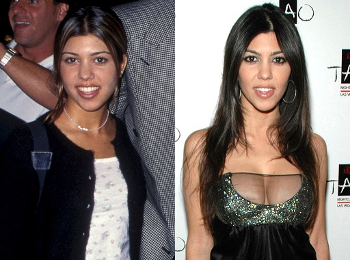 Kourtney Kardashian Plastic Surgery, Kourtney Kardashian Plastic Surgery before after photos, Kourtney Kardashian breast augmentation, Kourtney Kardashian breast implants, Kourtney Kardashian nose job2