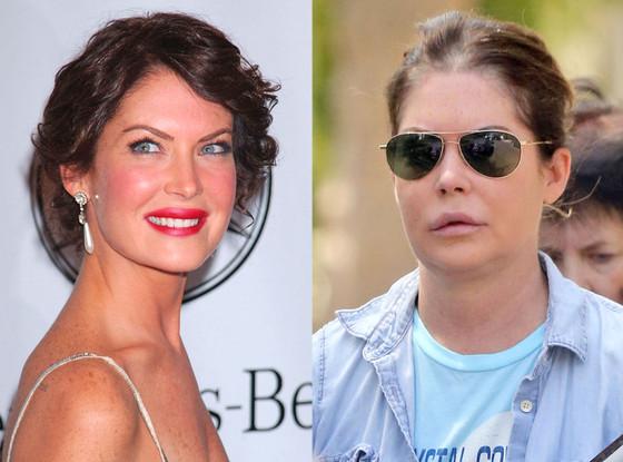 Lara Flynn Boyle plastic surgery, Lara Flynn Boyle plastic surgery before after photos, Lara Flynn Boyle nose job, Lara Flynn Boyle lip augmentation, Lara Flynn Boyle facelift, Lara Flynn Boyle botox
