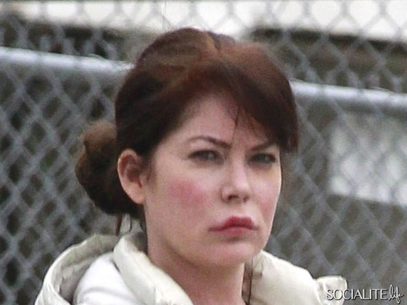 Lara Flynn Boyle plastic surgery, Lara Flynn Boyle plastic surgery before after photos, Lara Flynn Boyle nose job, Lara Flynn Boyle lip augmentation, Lara Flynn Boyle facelift, Lara Flynn Boyle botox2