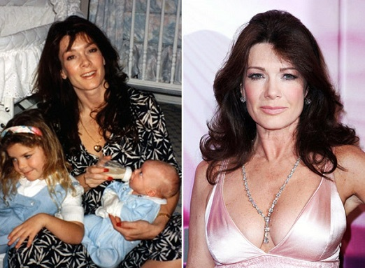 Lisa Vanderpump Plastic Surgery, Lisa Vanderpump Plastic Surgery Before And After Photos, Lisa Vanderpump botox, Lisa Vanderpump lip injections