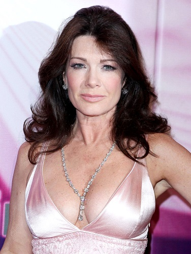 Lisa Vanderpump Plastic Surgery, Lisa Vanderpump Plastic Surgery Before And After Photos, Lisa Vanderpump botox, Lisa Vanderpump lip injections4