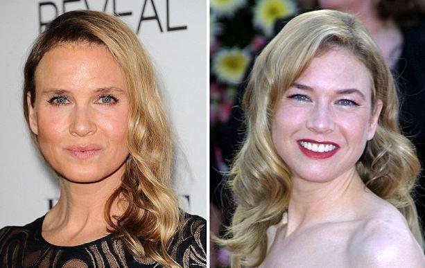 renee-zellweger-plastic-surgery-rumors-renee-zellweger-before-after-photos