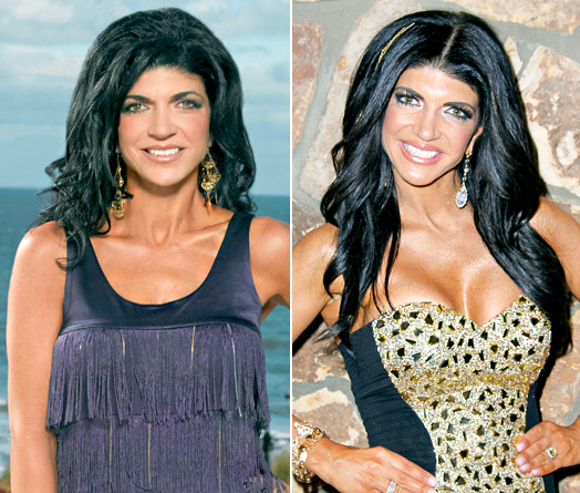 Teresa Giudice plastic surgery, Teresa Giudice Teresa Giudice breast augmentation, Teresa Giudice plastic surgery breast implants, Teresa Giudice botox1