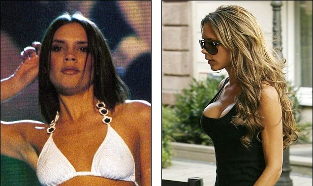 Victoria Beckham plastic surgery, Victoria Beckham breast augmentation, Victoria Beckham plastic surgery before after photos, Victoria Beckham breast implants