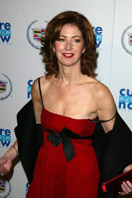 dana delany plastic surgery, dana delany plastic surgery before and after photos, dana delany plastic surgery botox3