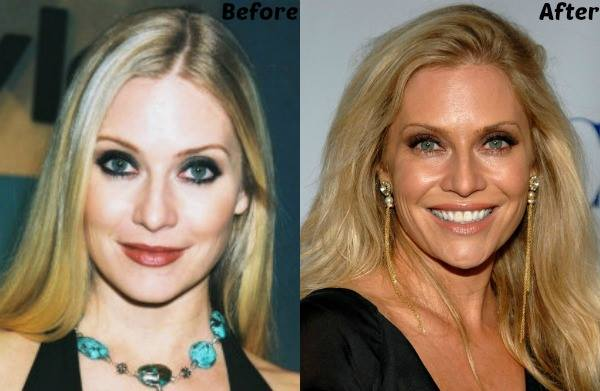 emily procter plastic surgery, emily procter plastic surgery before and after photos, emily procter plastic surgery breast augmentation, emily procter plastic surgery botox3