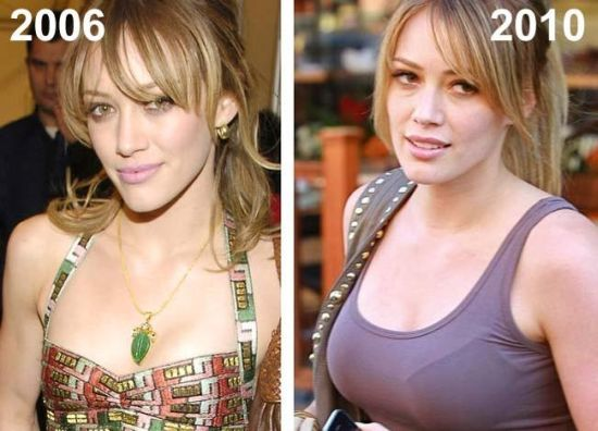 hilary duff plastic surgery, hilary duff plastic surgery before after photos, hilary duff breast augmentation, hilary duff breast implants, hilary duff nose job, hilary duff lip injection, hilary duff cosmetic dentistry