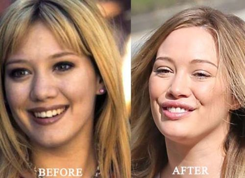 hilary duff plastic surgery, hilary duff plastic surgery before after photos, hilary duff breast augmentation, hilary duff breast implants, hilary duff nose job, hilary duff lip injection, hilary duff cosmetic dentistry1