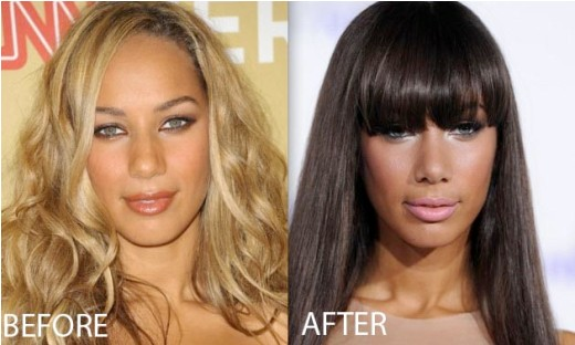 leona lewis plastic surgery, leona lewis plastic surgery before after photos, leona lewis nose job plastic surgery, leona lewis plastic surgery breast augmentation, leona lewis plastic surgery before and after photos1