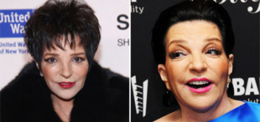 liza minnelli plastic surgery, liza minnelli plastic surgery before and after photos, liza minnelli plastic surgery botox, liza minnelli plastic surgery eyelift, liza minnelli plastic surgery facelift