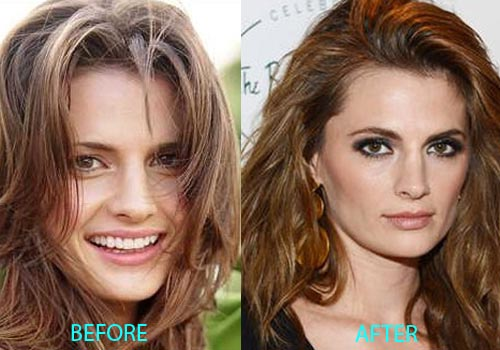 stana katic plastic surgery, stana katic plastic surgery nose job, stana katic plastic surgery after before photos