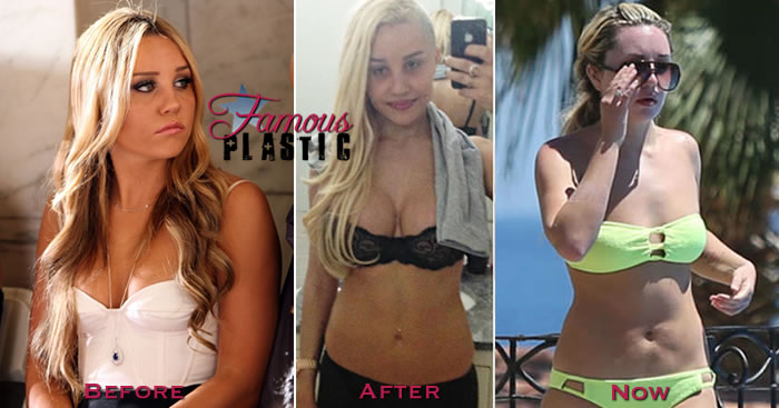 Amanda Bynes plastic surgery, Amanda Bynes plastic surgery before after photos, breast augmentation, breast implants, nose job1