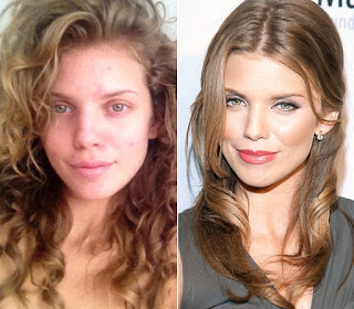 AnnaLynne McCord plastic surgery, AnnaLynne McCord plastic surgery before after photos, AnnaLynne McCord breast augmentation, breast implants, nose job, lip injection6