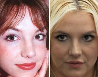 Britney Spears plastic surgery, Britney Spears plastic surgery before after photos, Britney Spears breast augmentation, Britney Spears breast implants, nose job, liposuction, lip injection1