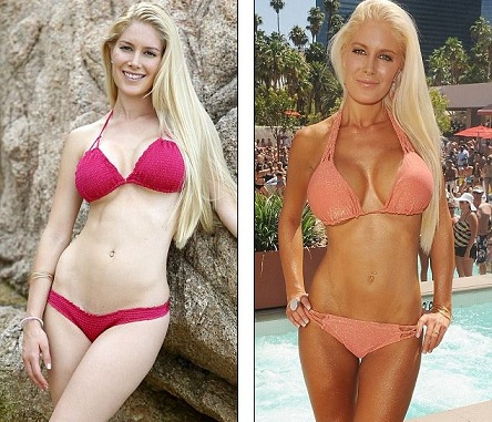 Heidi Montag plastic surgery, Heidi Montag plastic surgery before after photos, Heidi Montag breast augmentation, Heidi Montag breast implants, nose job, buttock implants, liposuction, botox, brow lift1