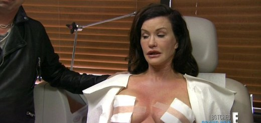 Janice Dickinson Plastic Surgery, Janice Dickinson Plastic Surgery before after photos, Janice Dickinson breast augmentation, Janice Dickinson breast implants, Janice Dickinson face lift, Janice Dickinson botox