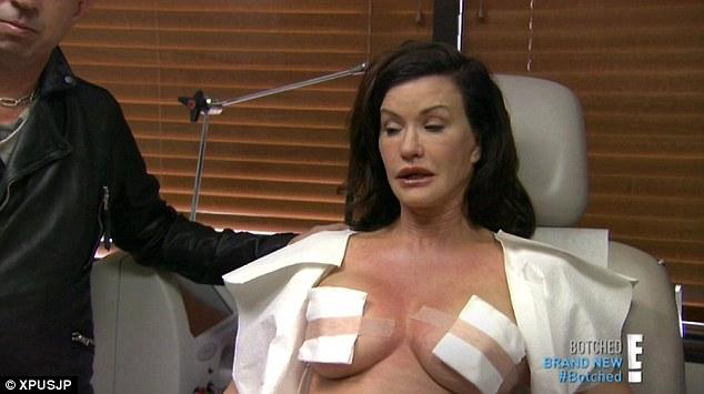 Janice Dickinson Plastic Surgery, Janice Dickinson Plastic Surgery before after photos, Janice Dickinson breast augmentation, Janice Dickinson breast implants, Janice Dickinson face lift, Janice Dickinson botox