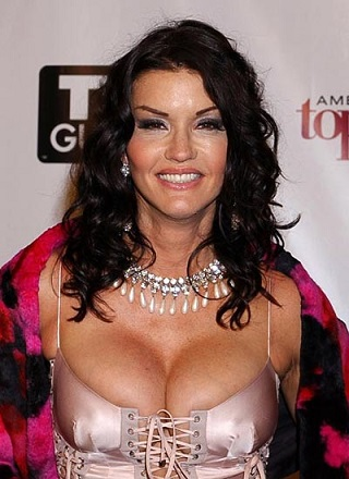 Janice Dickinson Plastic Surgery, Janice Dickinson Plastic Surgery before after photos, Janice Dickinson breast augmentation, Janice Dickinson breast implants, Janice Dickinson face lift, Janice Dickinson botox4