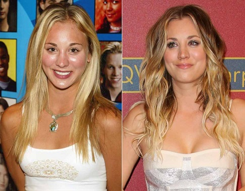 Kaley Cuoco plastic surgery, Kaley Cuoco plastic surgery before after photos, Kaley Cuoco breast augmentation, Kaley Cuoco breast implants, Kaley Cuoco botox, Kaley Cuoco before after cosmetic surgery
