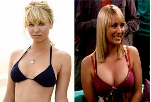 Kaley Cuoco plastic surgery, Kaley Cuoco plastic surgery before after photos, Kaley Cuoco breast augmentation, Kaley Cuoco breast implants, Kaley Cuoco botox, Kaley Cuoco before after cosmetic surgery3